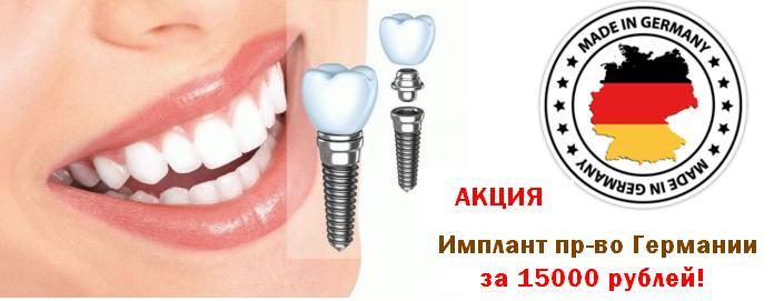 Акция -  имплант за 15000 рублей. Выгодно!